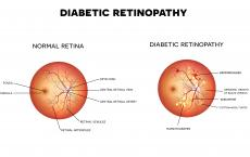 New Research Shows Drop In Diabetic Retinopathy In Wales