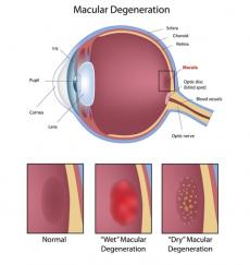 New Macular Centre for AMD Patients Opens In Bradford