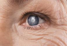 Cataract Surgery May Reduce Risk Of Premature Death, New Study Suggests