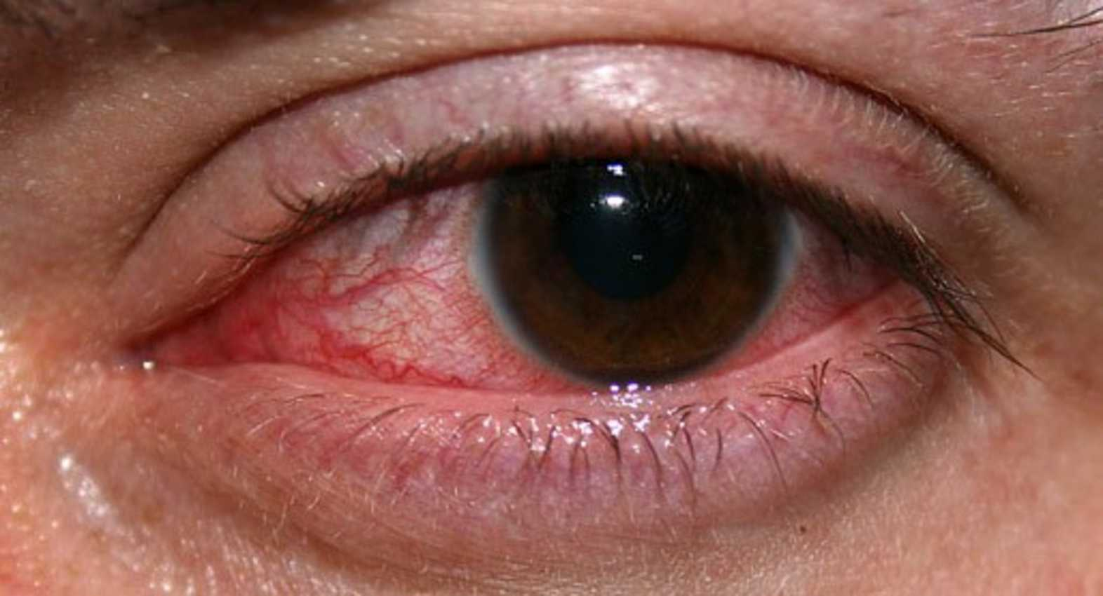 What is the fungal eye infection Fungal Keratitis?