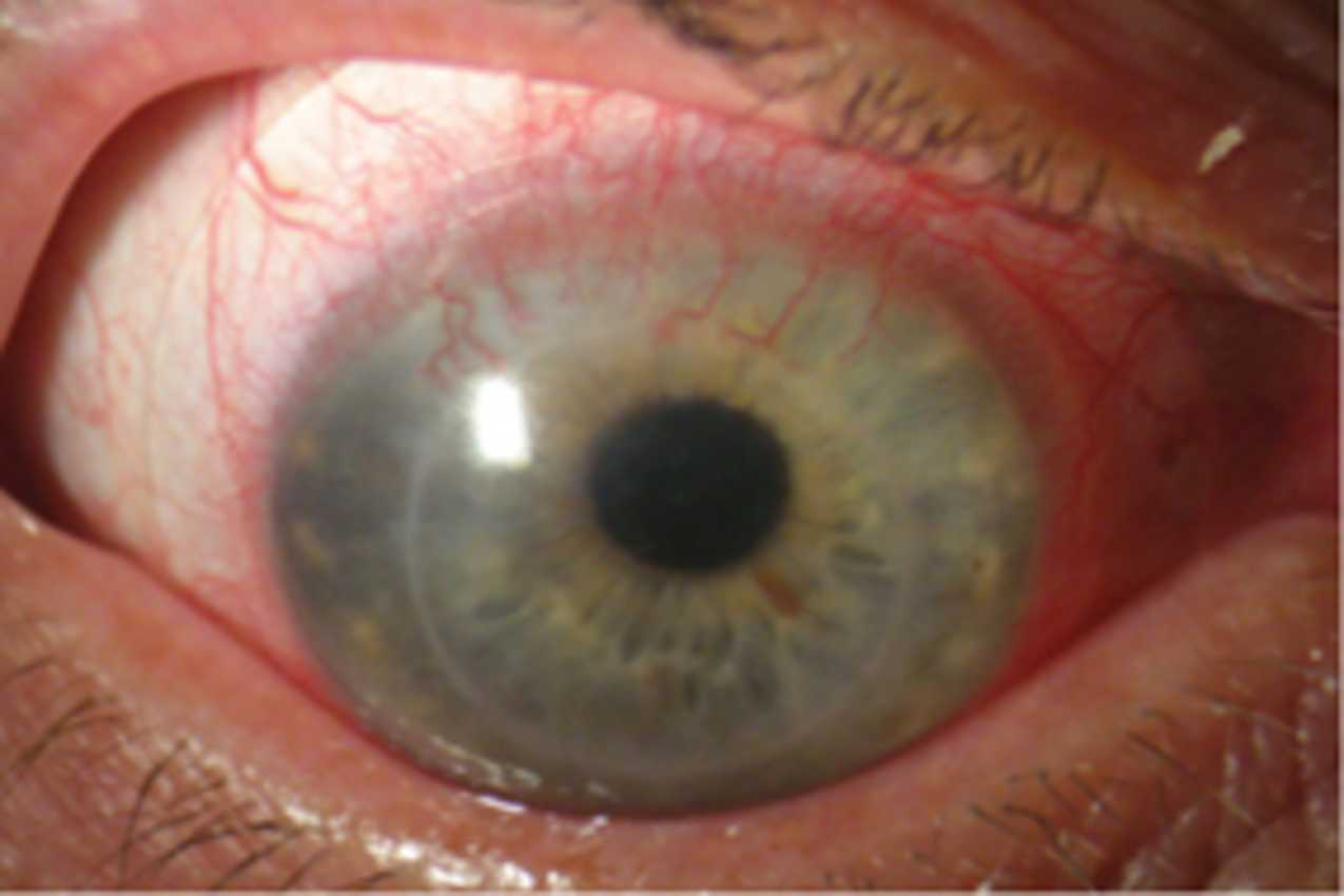Corneal Neovascularisation | Eye Blood Vessel Growth