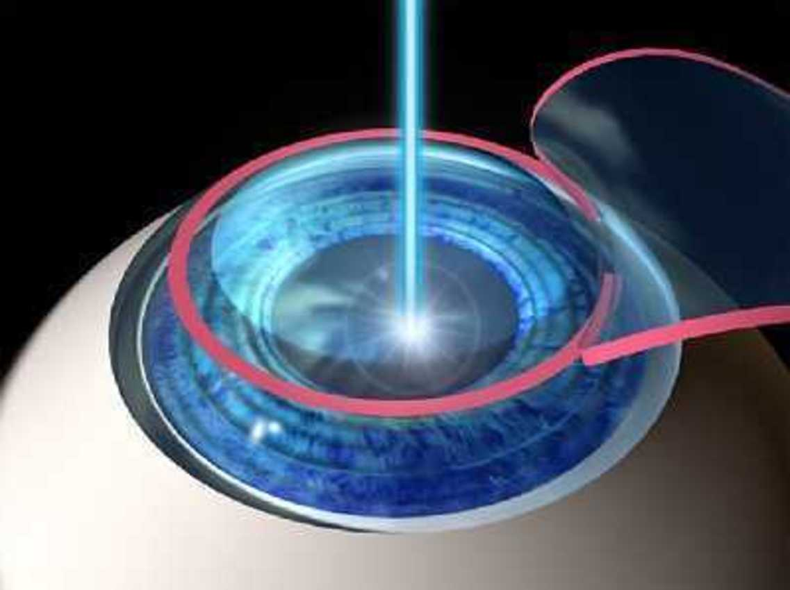 Contact Lenses vs Laser Eye Surgery
