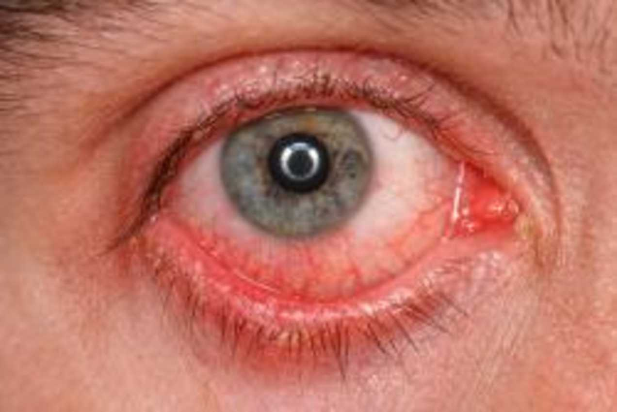 What is Conjunctivitis? Causes, Symptoms & treatment
