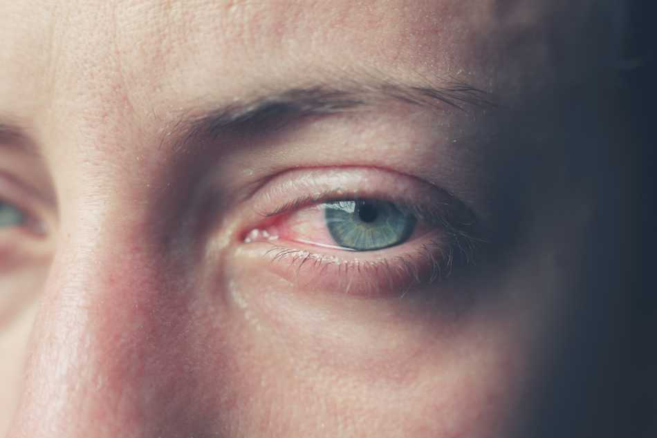 What causes bloodshot eyes?