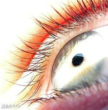 "Cancer drug saves baby""s eyesight"