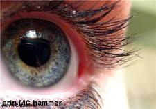 Contact lens wearers offered comfort tips