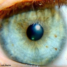 "Amniotic membrane ""may cause strabismus complications"""
