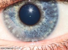 """Laser eye surgery """"is the real deal"""""""