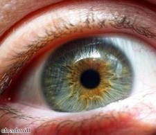 """Brit""""s eyesight restored using platinum eye implant"""