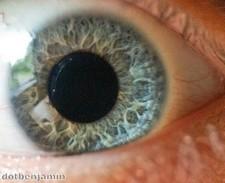 Eye transplant helps woman regain vision