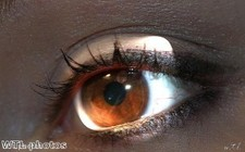 """Pioneering treatment restores mother""""s sight"""