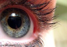 "New Microsoft contact lenses ""could monitor blood sugar"""