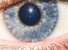 Glaucoma report released