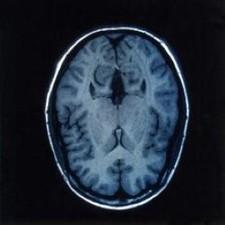 Study sheds light on brain recognition