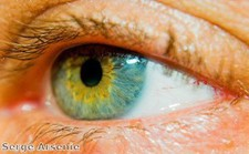 Are some people immune to eye disease?
